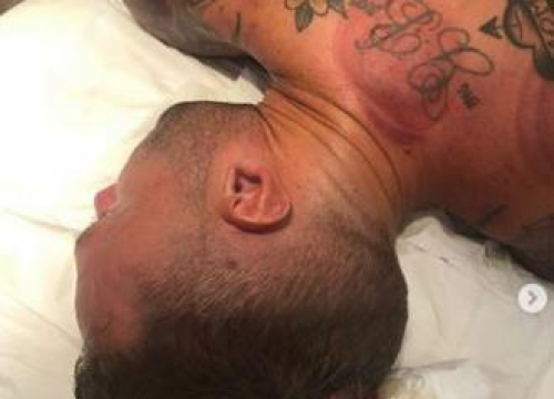 Calum Best Loses 'Cupcake Of Blood' During Cupping Therapy