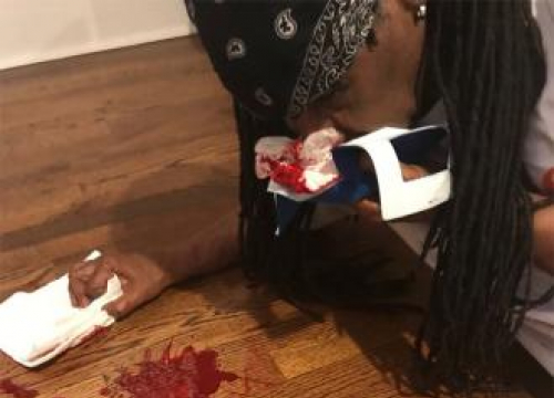 Nile Rodgers Breaks Nose In Studio Accident