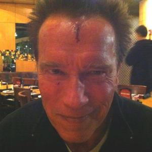 Arnold Schwarzenegger Injured On Set
