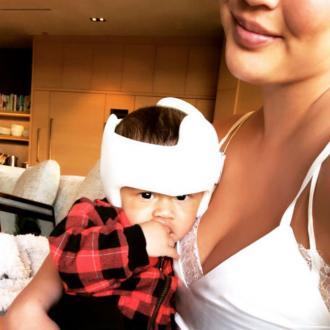 Chrissy Teigen's son gets corrective helmet