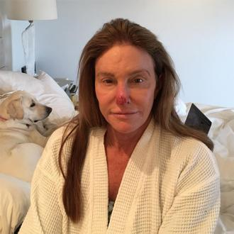 Caitlyn Jenner Has Sun Damage Removed From Nose