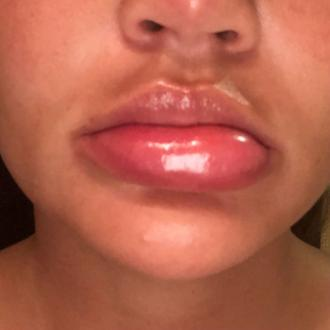 Chrissy Teigen has swollen lips