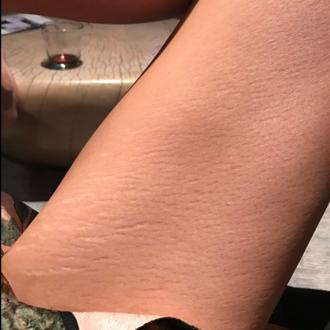 Chrissy Teigen Likes Her 'Soft' Stretch Marks