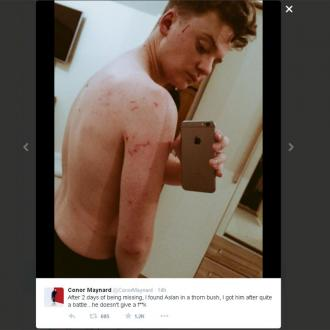 Conor Maynard bloodied and scratched in cat rescue