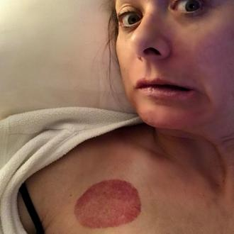 Debra Messing left with pepperoni cupping mark