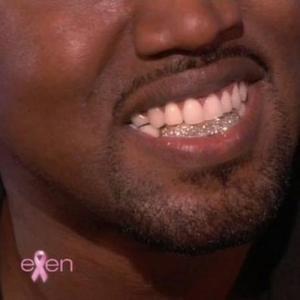 Kanye West Gets Diamond Teeth