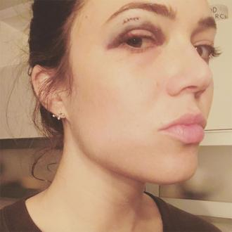Mandy Moore Gets Black Eye