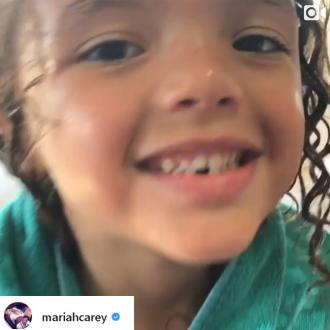 Mariah Carey's son Moroccan loses his first tooth