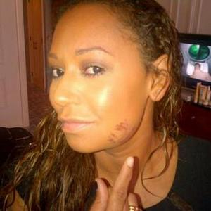 Mel B Suffers Facial Cuts After Falling In Seven Inch Heels