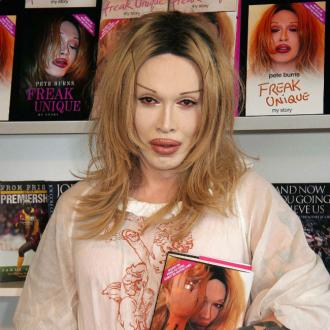 Pete Burns had been scheduled for TV appearance