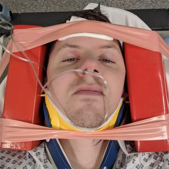 Professor Green fractures neck
