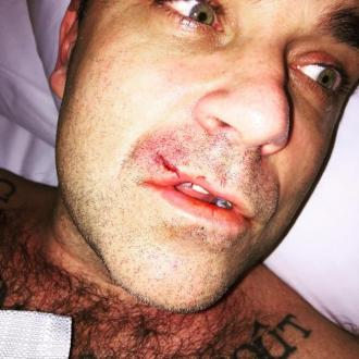 Robbie Williams injured by his computer