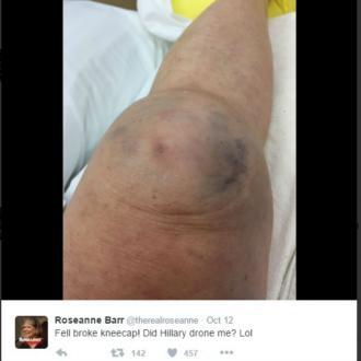 Roseanne Barr breaks kneecap