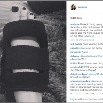 Rumer Willis fractures foot