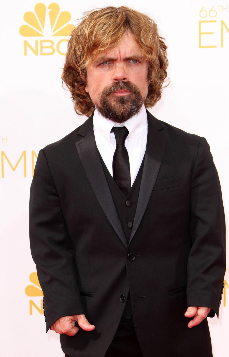 Peter Dinklage Gets Naked And Afraid For Saturday Night Live