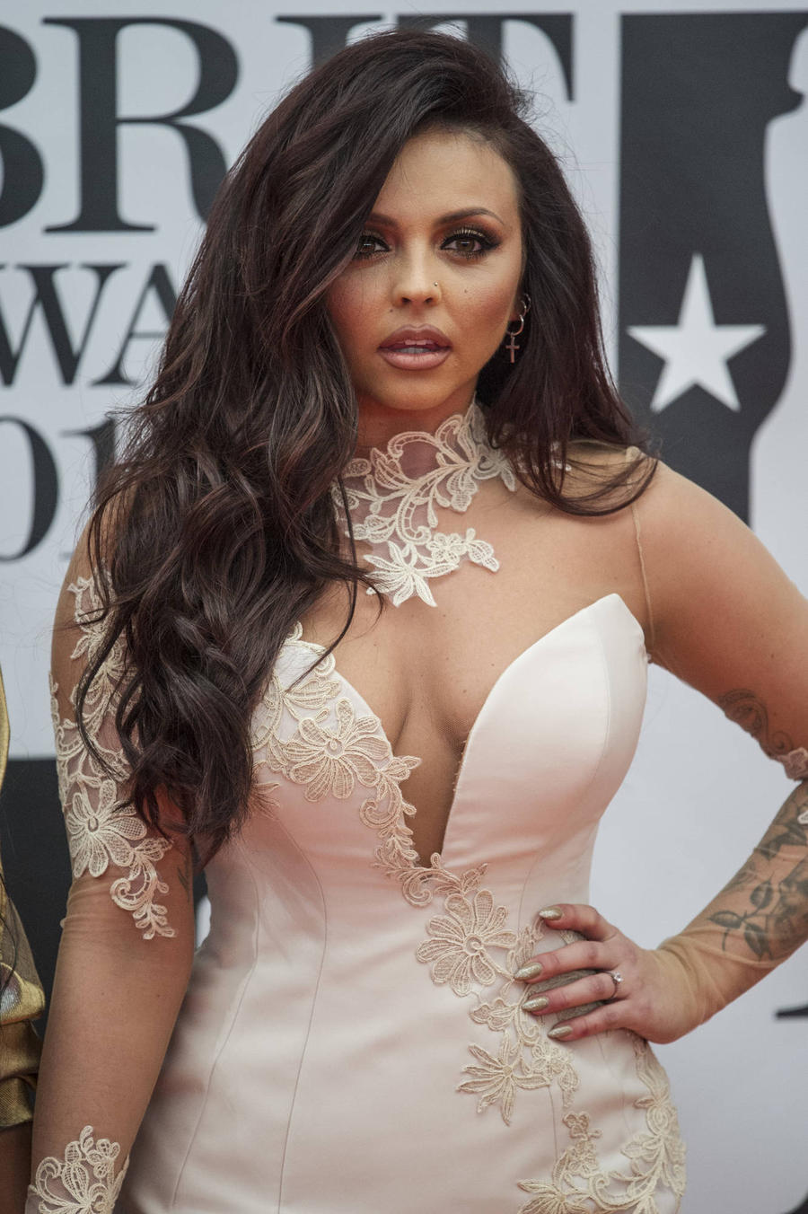 Jesy Nelson Nursing Wrist Injury