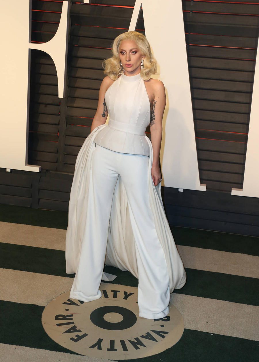 Lady Gaga In Pain Ahead Of American Music Awards Performance