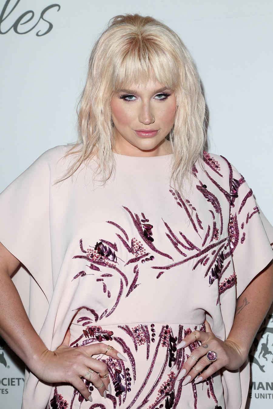 Kesha Given Standing Ovation At Billboard Music Awards